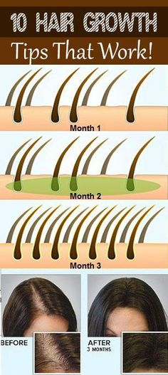 10 Best Hair Growth Tips —> That Works Amazing