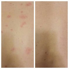 My husband started breaking out on his back, so I decided to try applying the luminesce serum. This is a before and after of just one night with the serum! Needless to say, we were both amazed! Contact me, visit my Facebook page, or go to www.inthismoment.jeunesseglobal.com First Night, Serum, Anti Aging, Tattoo Quotes, How To Apply, Husband, Facebook, Quote Tattoos