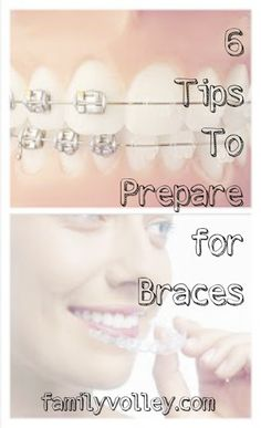 Great tips for helping kids (or adults) prepare for braces. familyvolley.com