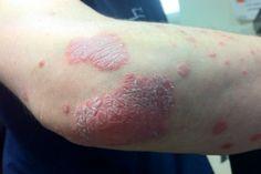 A psoríase normalmente se manifesta nos cotovelos, joelhos, couro cabeludo, mãos, unhas e plantas dos pés, mas pode atingir qualquer área da pele.