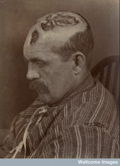 Tertiary syphilitic ulceration of the scalp (19th century).