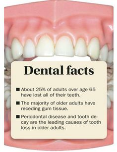 Why it is so important to brush, floss and receive regular dental check-ups! Dental Health, Oral Health, Dental Care, Teeth Health, Healthy Teeth, Healthy Life, Health Tips, Health Care, Dental Quotes