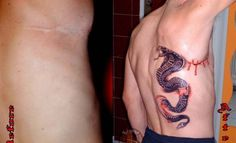 A brilliant tattoo design of a fierce-looking cobra is enough to catch anyone's attention, and the strategically placed line of 'blood' also works to cover that scar once and for all! Awesome idea!