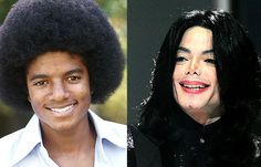 Michael Jackson Before and After Surgery Always interesting what you can find when you type in elective surgery and other related terms