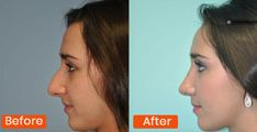 Nose Reshaping With Facial Yoga A number of different videos demonstrating how to make your nose smaller! Yoga Facial, Facial Massage, Make Nose Smaller, Nose Reshaping, Small Nose, Nose Shapes, Brow Lift, Face Exercises, Without Makeup