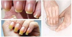 Bleach and beautify your nails naturally and quickly. Bleach and beautify your nails naturally and q Crochet Backpack Pattern, Ongles Forts, Diy Pedicure, Nail Repair, Stainless Steel Nails, Hand Care, Yellow Nails, Lip Brush, Eyebrow Makeup