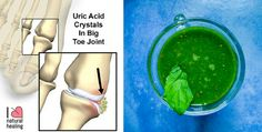 Looking for getting rid of uric acid crystallization in your joint? Here are simple Juice Recipe To Remove Gout And Joint Pain Naturally.