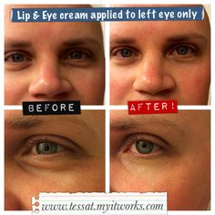 """My friend Turned her husband into an #itworks experiment last night using our #lip  #eye cream! This is after 30 SECONDS! Lip  Eye only $29 {LC price) www.amandarwraps.myitworks.com --- """"Say goodbye to laugh lines with the smoothing, natural botanicals of this targeted moisturizer. Lip  Eye lessens the look of fine lines, wrinkles, bags, and puffiness by creating a tensor effect to give your delicate lip and eye areas a youthful lift. Now that's something to smile about!"""""""