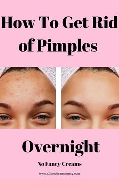 Get rid of pimples overnight with these amazing #natural #homeremedies #acne #blackheads #pimples #adultacne How To Clear Pimples, How To Get Rid Of Pimples, Get Rid Of Blackheads, Pimple Marks, Acne Marks, What Causes Pimples, Remove Pimples Overnight, Painful Pimple, Make Up