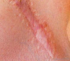 How Can I Get Rid of My Scars?