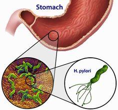 Secretele: Cura Naturala Impotriva Helicobacter Pylori, Bacteria care Duce la Aparitia Ulcerului