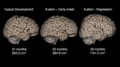 Bigger Brains in Certain Types of Autism, Study Finds - ABC News