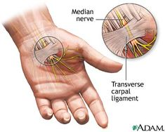 Dr. Shaoulian is an expert in the diagnosis and treatment of hand tingling and hand numbness