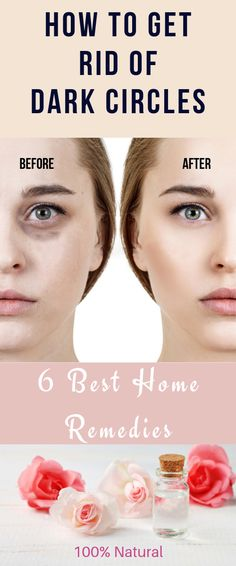 How To Get Rid Of Dark Circles Fast: 6 Natural Home Remedies Alluring and captivating eyes are something we all desire. Shimmering eyes make you look and feel confident, fresh and appealing. Natural Health Tips, Natural Health Remedies, Natural Healing, Herbal Remedies, Cold Remedies, Bloating Remedies, Natural Foods, Hair Home Remedies, Skin Care Home Remedies