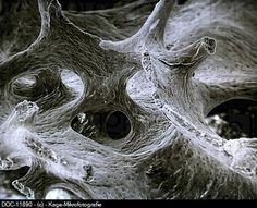Rib bone scanning electron microscope