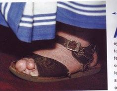 This is the deformed foot of Blessed Teresa of Calcutta.  Her feet  were deformed because she didn't want anyone to get stuck with the worst pair of shoes, so she would dig through the pile and would keep the ill fitting pair for herself. Years of wearing bad shoes deformed her feet.