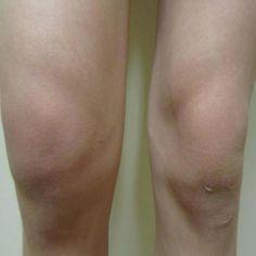 Major Symptoms Of Peripheral Arthritis Advanced Pain Management Treatments http://painkickers.com/advanced-pain-management/