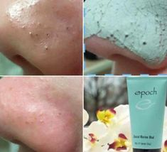 This amazing mud mask removes oil, toxins and impurities from the skin, eradicates black heads and can even reduce the l… Mask For Oily Skin, Oily Skin Care, Nu Skin Mud Mask, Dry Skin, Skin Mask, Epoch Mud Mask, Marine Mud Mask, Glacial Marine Mud, Oily Skin Remedy