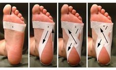 If you suffer from recurring heel pain (Plantar fasciitis) try this remedy. Here is how to tape foot to relieve heel pain. It's just short of miraculous. Hope it helps someone else. It's amazing how this worked. Health And Beauty, Health And Wellness, Health Tips, Plantar Fasciitis Taping, Foot Pain Relief, Sore Feet, Heel Pain, Elderly Care, Osteogenesis Imperfecta