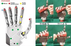 Silvestro-Micera-Bionic-Hand-03.jpg