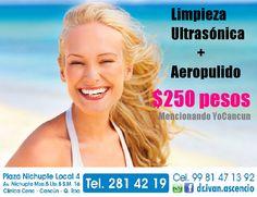 Limpieza Ultrasónica + aeropulido por tan solo $250 pesos mencionando YoCancun