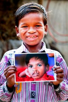 Seven-year-old Sarban of India proudly shows his new #smile in February 2012. Sarban traveled 10 hours by bus to receive free surgery provided by #OperationSmile in India, December 2010.  (Operation Smile Photo – Jasmin Shah)