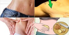 Remove Stretch Marks Fast With These 6 Natural Remedies. Stretch marks are an unpleasant aesthetically issue that affects millions of people nowadays. These marks occur when the skin is stretched and they usually appear on hips thighs buttocks abdomen an Stretch Mark Remedies, Stretch Mark Removal, Skin Care Regimen, Skin Care Tips, Cellulite, Stretch Marks On Thighs, Remover, Hair Loss, Healthy Skin