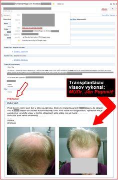Transplantácia vlasov Dr.Med. Ján Popovič Thanks