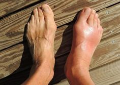 Gout is a type of arthritis. Arthritis is a common condition that causes swelling and pain in your joints. Gout is considered a chronic disease, meaning it does not have a cure and will usually last your whole life. Home Remedies For Gout, Gout Remedies, Natural Remedies, Cures For Gout, Signs Of Gout, Essential Oils For Gout, Gout Relief, Pain Relief, Shin Splints