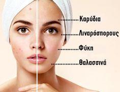 8 διατροφικά μυστικά από δερματολόγους που θα κάνουν το δέρμα σας τέλειο Αγοράζουμε εκατοντάδες διαφορετικά προϊόντα μακιγιάζ για να καταφέρουμε να κάνουμε το δέρμα μας να φαίνεται υγειές κι όμορφο. Το αποτέλεσμα είναι να ξοδεύουμε πάρα πολλά χρήματα και μάλιστα για να καλύψουμε τις ατέλειες του προσώπου μας. Στόχος θα πρέπει να είναι να απαλλαγούμε […]