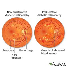Facts About Diabetic Retinopathy