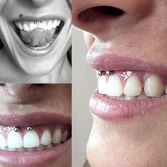 50 Impressive Smiley Piercing Ideas-A Trendy Piercing to Complement your Smile