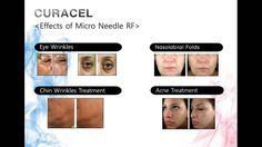 asethetic&medical product - thread lift,beauty equipment etc
