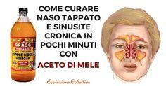 Come curare Naso Tappato e Sinusite Cronica con l'Aceto di Mele.