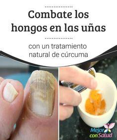 #Combate los hongos en las uñas con un #tratamiento natural de cúrcuma   La cúrcuma tiene #propiedades antifúngicas y antibacterianas que pueden ayudar a combatir los hongos en las uñas. Descubre cómo utilizarla con este fin.