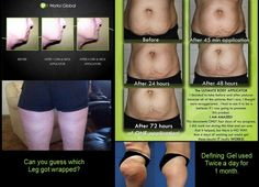 WOW! Results in 45 minutes! Celebritythinwraps.com