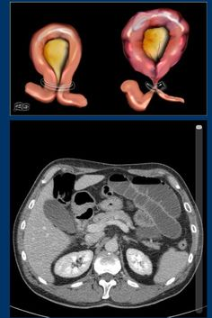 Closed loop obstruction is a specific type of obstruction in which two points along the course of a bowel are obstructed at a single location thus forming a closed loop. Usually this is due to adhesions, a twist of the mesentery or internal herniation. In the large bowel it is known as a volvulus. In the small bowel it is simply known as small bowel closed loop obstruction. Especially in the small bowel the risk of strangulation and bowel infarction is high with a mortality rate of 10-35%.