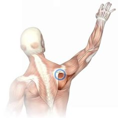 Massage Therapy for Shoulder Pain Perfect Spot No. 14, The Most Predictable Unsuspected Cause of Shoulder Pain