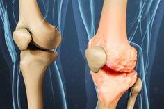 Knee Osteoarthritis is a degenerative process that causes knee joint pain, stiffness, and swelling. Explore knee osteoarthritis symptoms and treatments. Signs Of Arthritis, Rheumatoid Arthritis Treatment, Knee Arthritis, Arthritis Relief, Types Of Arthritis, Arthritis Symptoms, Pain Relief, Shoulder Arthritis, Natural Treatments