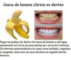 Natural Teeth Whitening Remedies Whiten teeth - Benefits of banana peels! Sounds weird right? Before throwing off banana peels, here are benefits of banana peels you cant ignore. Whitening Skin Care, Teeth Whitening Remedies, Charcoal Teeth Whitening, Natural Teeth Whitening, Whitening Kit, Banana Peel Teeth, Banana Uses, Salud Natural, White Teeth