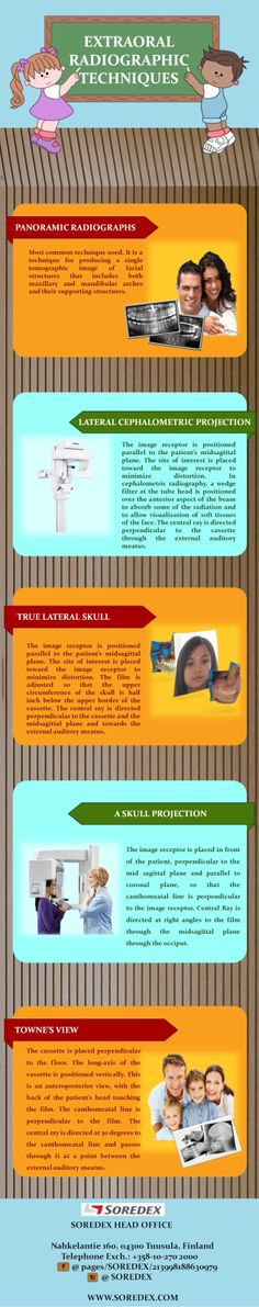 How Civil Engineers give us Quality of Life (Infographic) uCollect - Cephalometric Analysis Resume Sample
