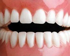 Zbavte se zubního kamene doma - Strana 2 z 2 - Příroda je lék Perfect Teeth, Health Advice, Health Care, Organic Beauty, Natural Health, Health And Beauty, Beauty Hacks, Beauty Tips, Hair Beauty