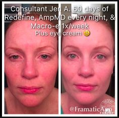 Consultant Jennifer Angster:  Redefine, Amp MD every night and Macro Exfolliator plus eyecream. (60 days)