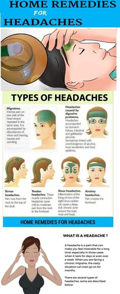 Watch This Video Classy Natural Headache Remedy for Instant Headache Relief Ideas. Incredible Natural Headache Remedy for Instant Headache Relief Ideas. Home Remedy For Headache, Natural Headache Remedies, Remedies For Headaches, Holistic Remedies, Health Remedies, Getting Rid Of Headaches, Migraine Relief, Headache Map, Pain Relief