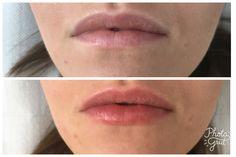 Delikatne wypełnianie ust kwasem hialuronowym #isabelspa #kwas #hialuronowy #aliaxin