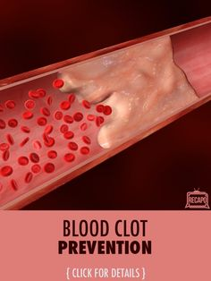 Did you know that how you sit could help you prevent a blood clot? Learn what causes blood clots, where you need to worry about them, and how raisins can save the day.