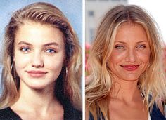 Celebrity Cameron Diaz Plastic Surgery Nose Job Before And After