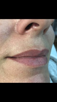 Healed lips tattoo , 7 months after session by Kouki