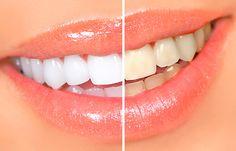 Отбеливание зубов http://sovjen.ru/otbelivanie-zubov  Белых от природы зубов не существует — они имеют желтоватый или сероватый оттенок, заложенный генетически также, как цвет кожи и волос. По мере взросления человека зубы темнеют из-за употребляемой пищи, напитков, содержащих красители, курения и других неблагоприятных факторов. Доказано, что цвет зубной эмали никак не связан с состоянием здоровья челюсти, поэтому процедура отбеливания зубов носит ...
