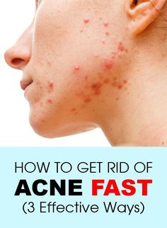 How To Get Rid of Acne Fast (3 Effective Ways) #Acne
